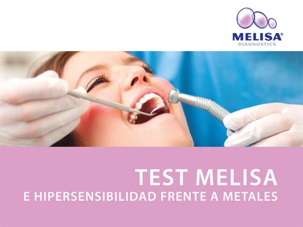 test-melisa-hipersensibilidad-metales